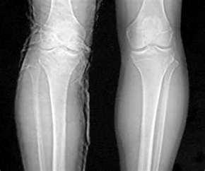 Нижний новгород лангет коленный сустав народная медицина суставы медвежье внутреннее сало
