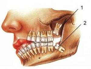 33 зуб клиника: